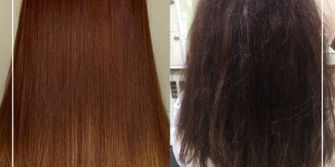هزینه احیا و مراقبت از مو
